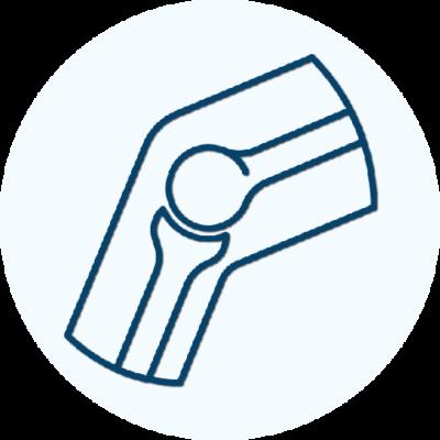 protezoplastyka